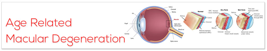 Viagra And Age Related Macular Degeneration